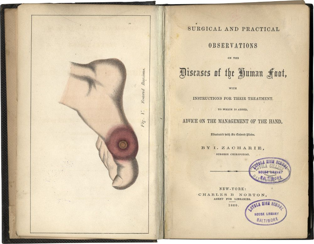 Rare Signed Copy of Lincoln's Jewish Chiropodist and Spy, Dr. Issachar Zacharie's Book